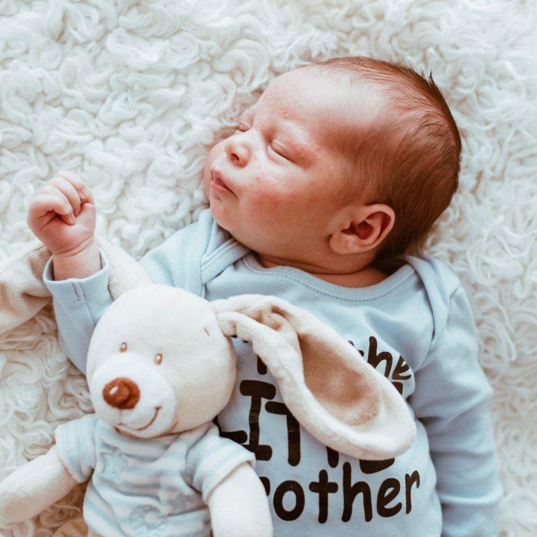 acné du nourrisson